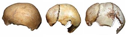 3 crâne-coupes