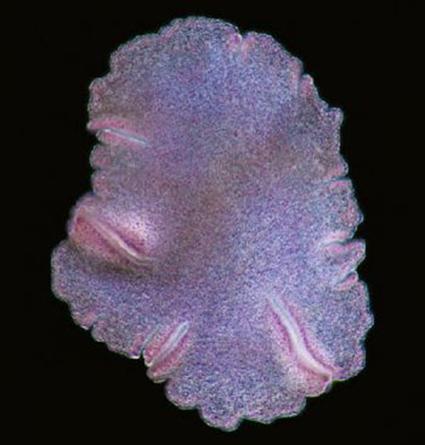 Trichoplax adhaerens