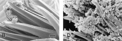 Croissance d'un biofilm de Yersinia pestis sur les épines du proventricule d'une puce vue au microscope électronique à balayage