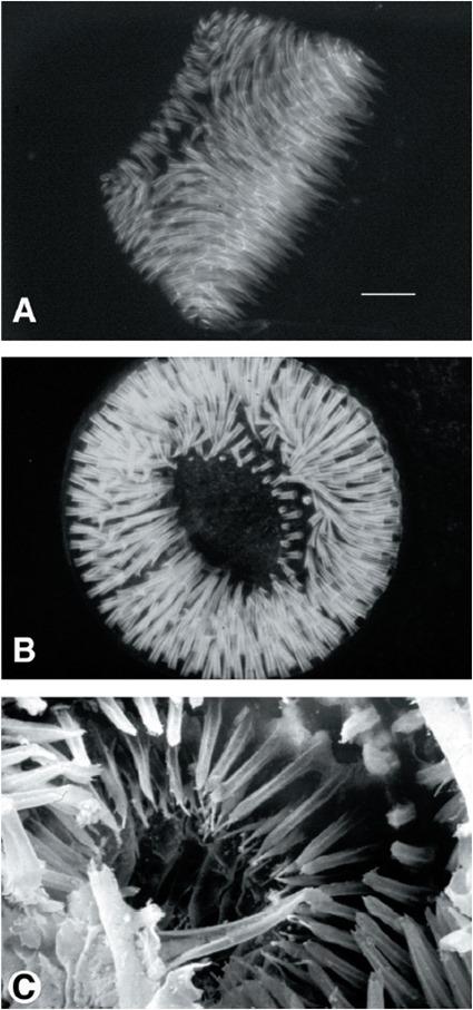 Epines du proventricule de la puce Xenopsylla cheopis, les deux premières photos en fluorescence (les épines sont auto-fluorescentes) et la 3ème au microscope électronique à balayage