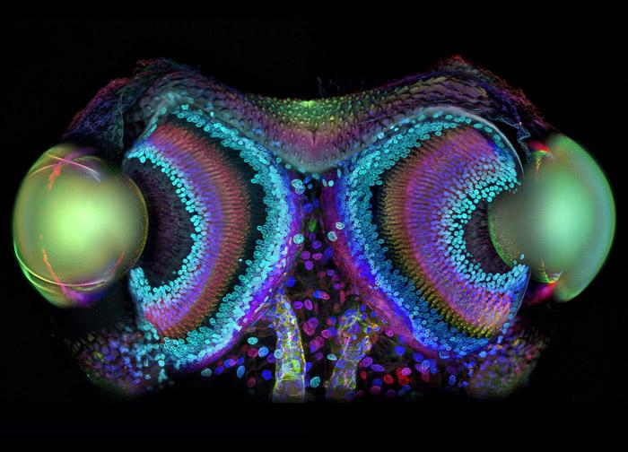 Dr. Igor Siwanowicz, Section Frontale des yeux de l'araignée Phalangium opilio