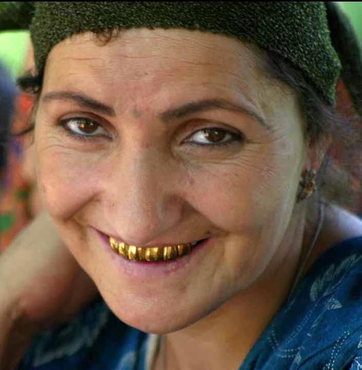 Les dents du Tajikistan