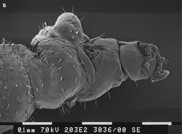 Vue de côté de la tête, thorax et premier segment abdominal d'une femelle Vestigipoda maschwitzi, Miscroscope électronique