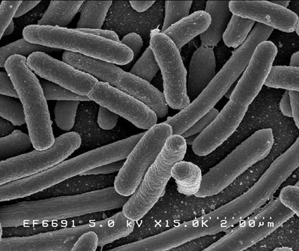 Escherichia coli au Microscope Electronique à Balayage